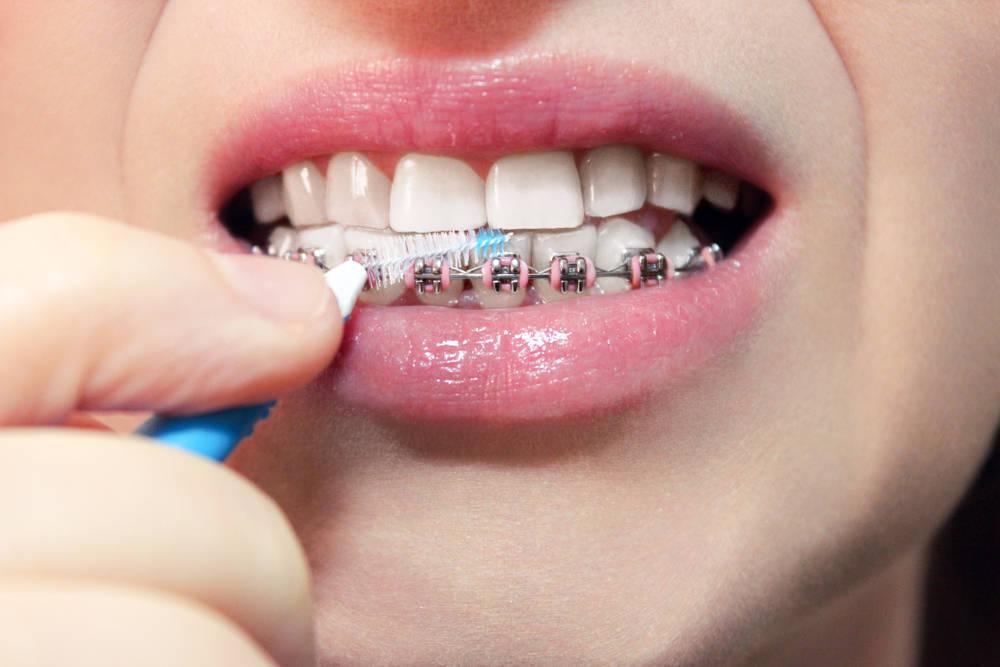 Por cuánto dinero sale una ortodoncia