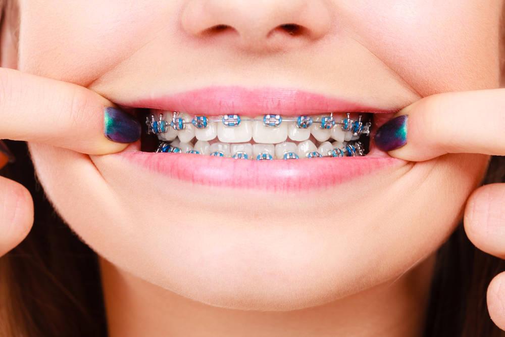 Los brackets están de moda: Guía completa para el cuidado de tu ortodoncia